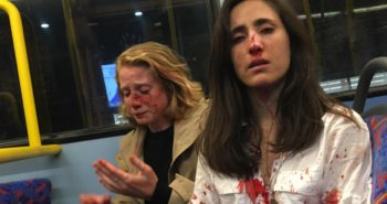 The 2 gay women brutally beaten on a London bus for refusing to kiss blame the attack on rightwing populism